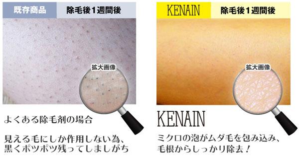 除毛効果の比較