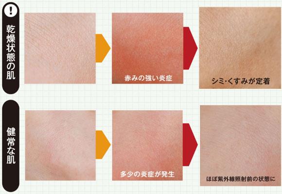 乾燥肌と健康な肌の比較